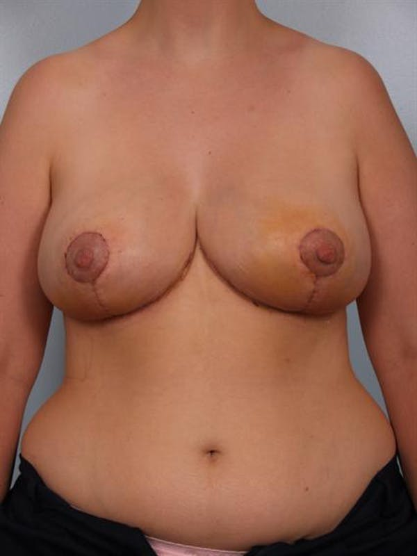 Breast Reduction Gallery - Patient 1310625 - Image 2