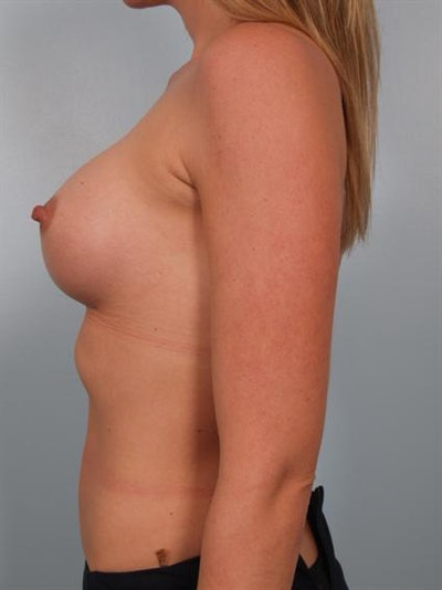 Breast Augmentation Gallery - Patient 1310626 - Image 6