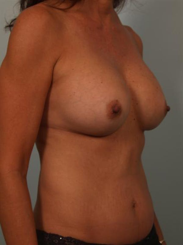 Complex Breast Revision Gallery - Patient 1310628 - Image 6