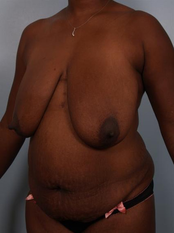 Breast Reduction Gallery - Patient 1310633 - Image 3
