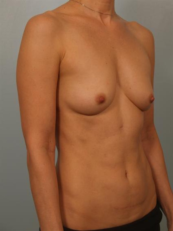 Breast Lift Gallery - Patient 1310632 - Image 3