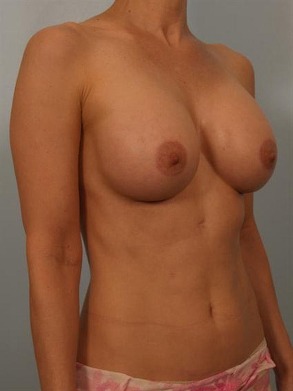 Breast Lift Gallery - Patient 1310632 - Image 4