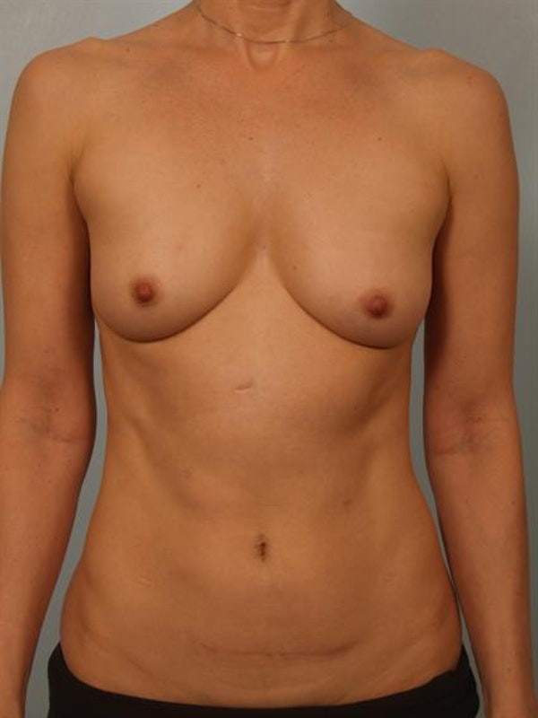 Breast Lift Gallery - Patient 1310632 - Image 1
