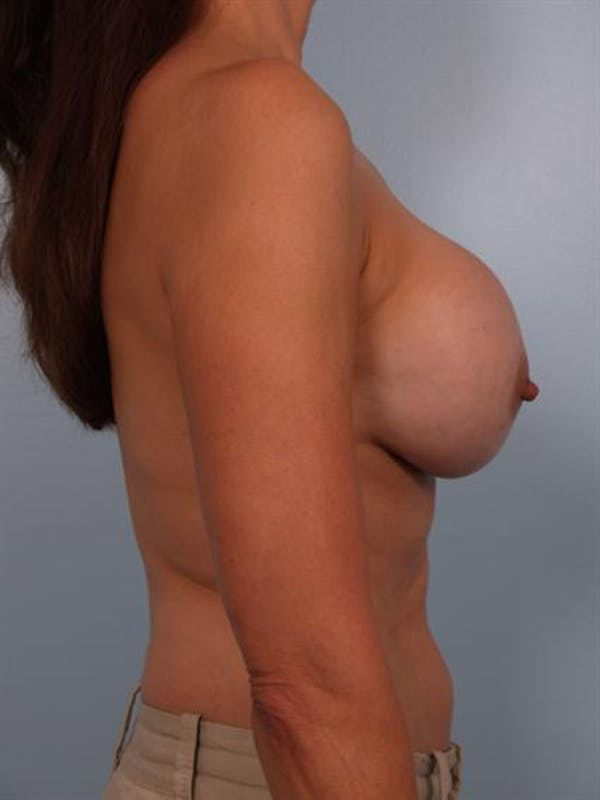 Complex Breast Revision Gallery - Patient 1310635 - Image 3
