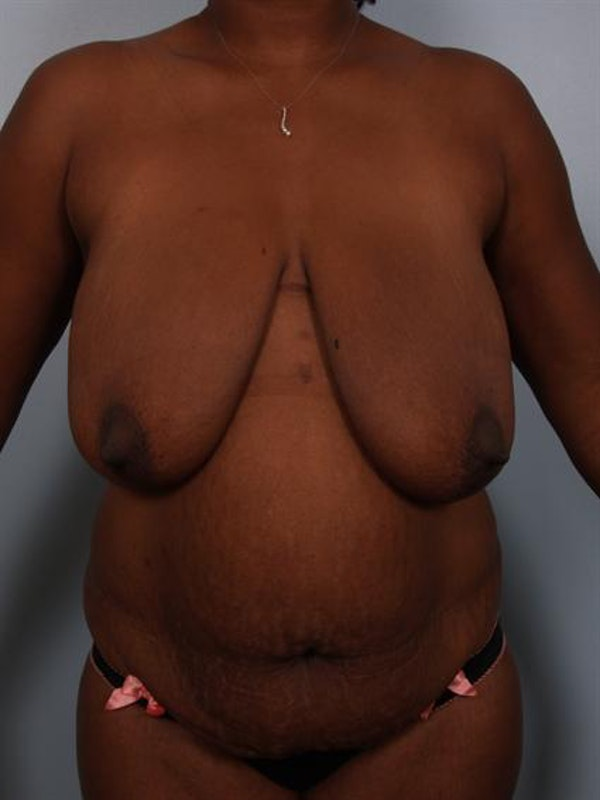 Breast Reduction Gallery - Patient 1310633 - Image 1