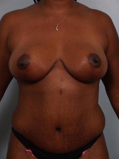 Breast Reduction Gallery - Patient 1310633 - Image 2