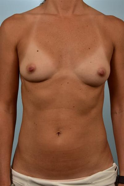 Breast Augmentation Gallery - Patient 1310637 - Image 1