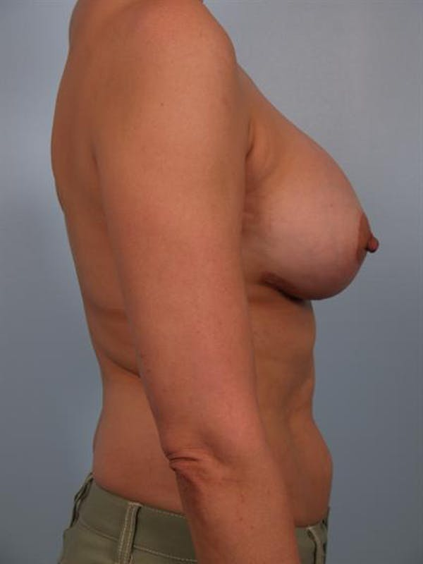 Complex Breast Revision Gallery - Patient 1310635 - Image 4