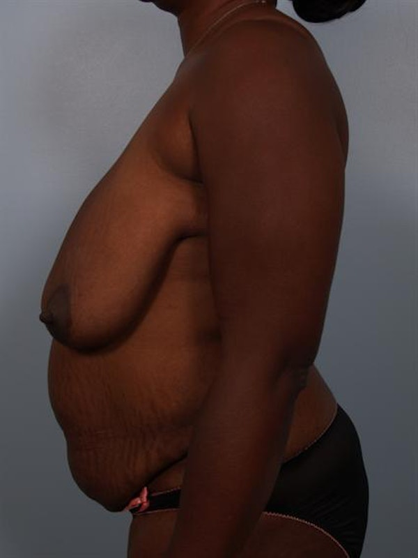 Breast Reduction Gallery - Patient 1310633 - Image 5