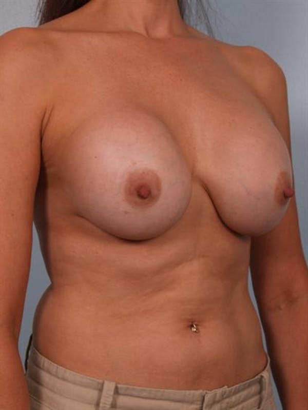 Complex Breast Revision Gallery - Patient 1310635 - Image 5