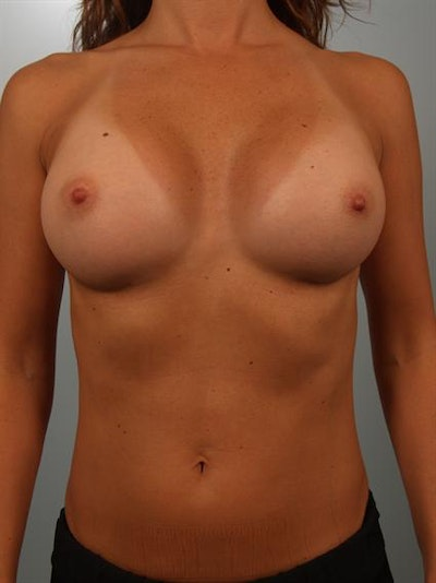 Breast Augmentation Gallery - Patient 1310637 - Image 2