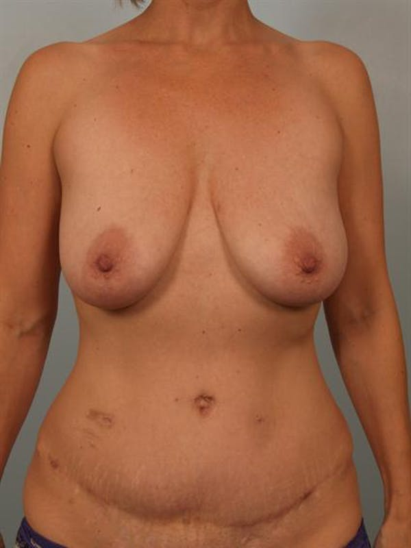 Fat Grafting Gallery - Patient 1310636 - Image 1