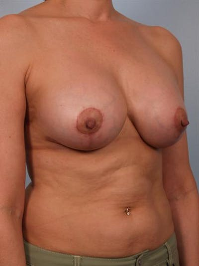 Complex Breast Revision Gallery - Patient 1310635 - Image 6
