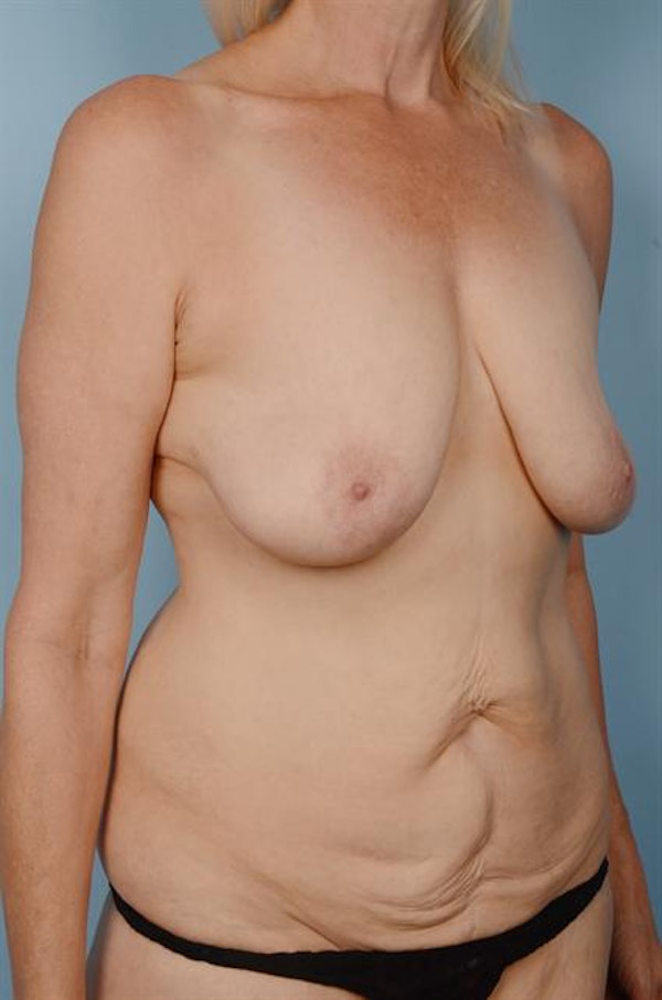 Mommy Makeover Gallery - Patient 1310634 - Image 3
