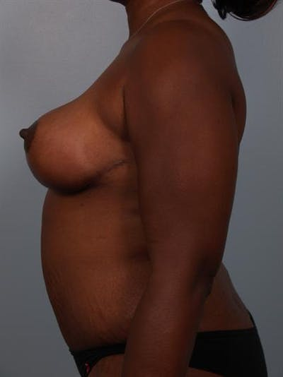 Breast Reduction Gallery - Patient 1310633 - Image 6