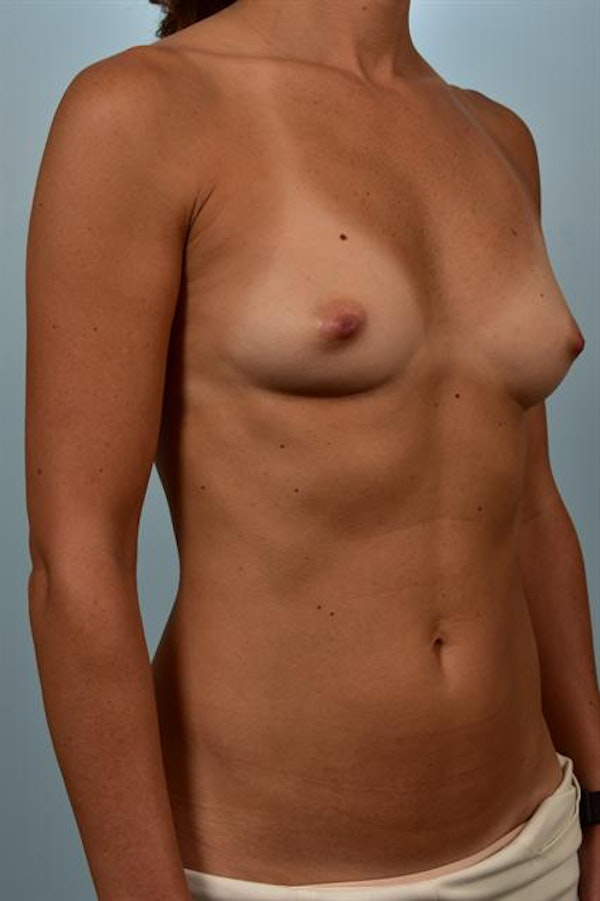 Breast Augmentation Gallery - Patient 1310637 - Image 3