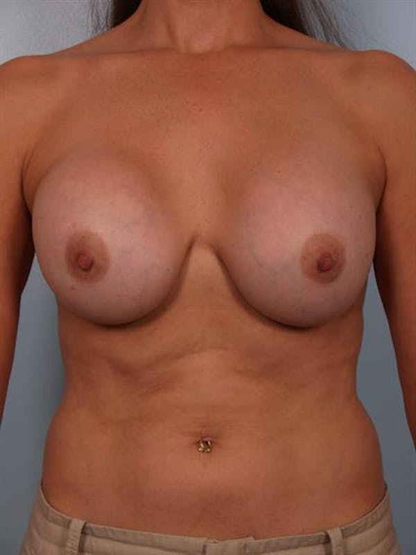 Complex Breast Revision Gallery - Patient 1310635 - Image 1
