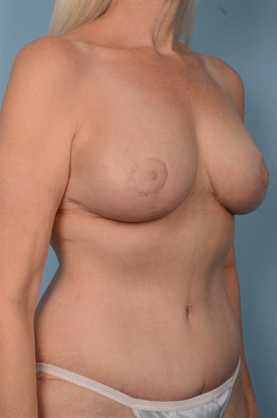 Mommy Makeover Gallery - Patient 1310634 - Image 4