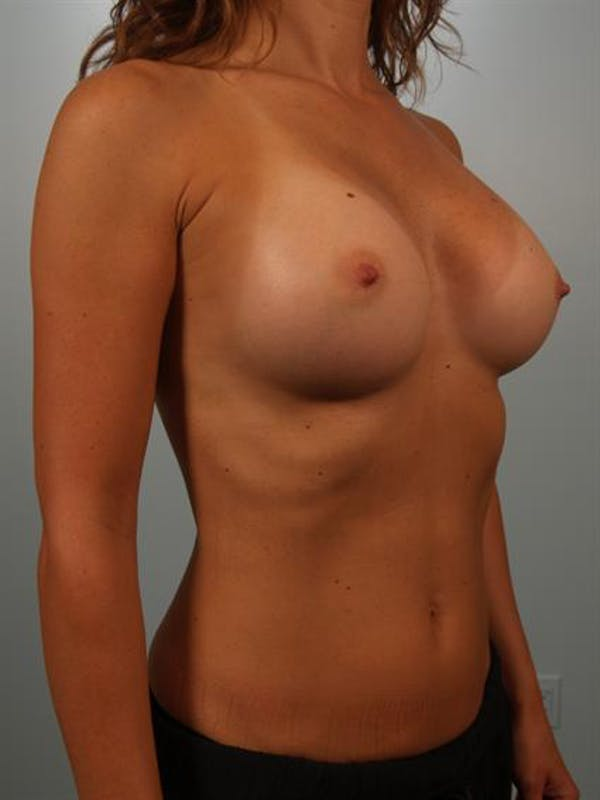Breast Augmentation Gallery - Patient 1310637 - Image 4