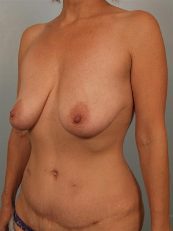 Fat Grafting Gallery - Patient 1310636 - Image 3
