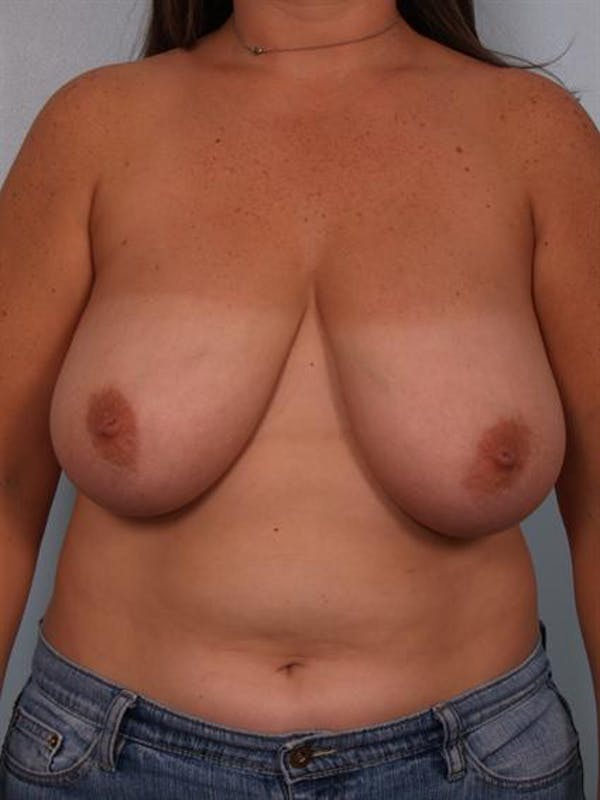 Breast Reduction Gallery - Patient 1310639 - Image 1