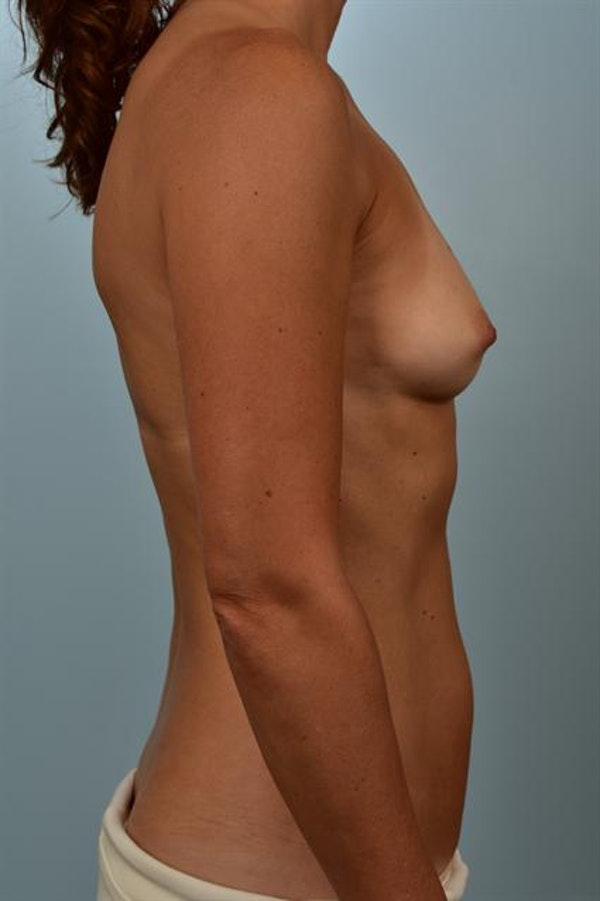 Breast Augmentation Gallery - Patient 1310637 - Image 5