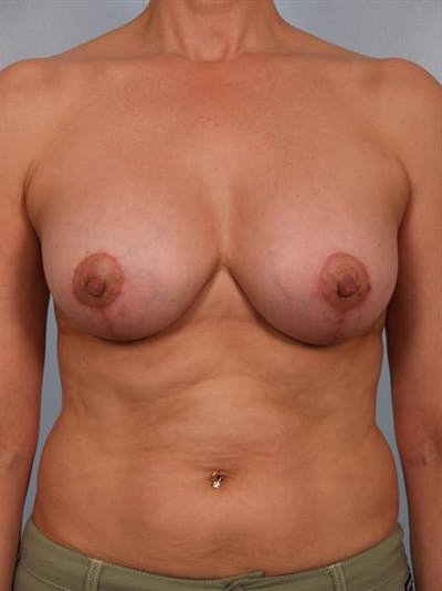 Complex Breast Revision Gallery - Patient 1310635 - Image 2