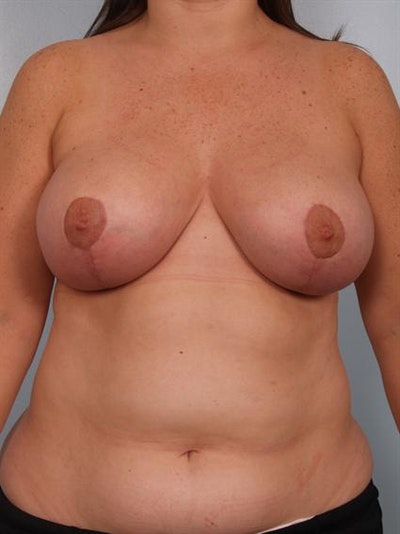 Breast Reduction Gallery - Patient 1310639 - Image 2