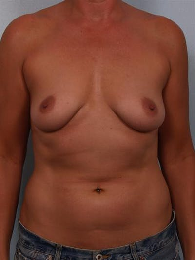 Breast Lift Gallery - Patient 1310638 - Image 1