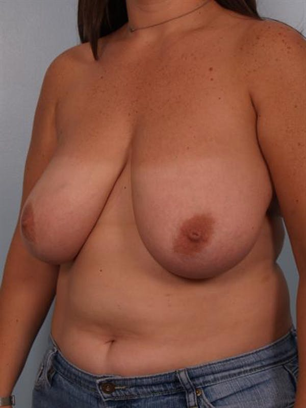 Breast Reduction Gallery - Patient 1310639 - Image 3