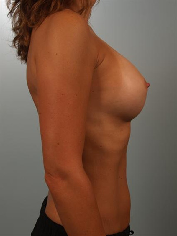 Breast Augmentation Gallery - Patient 1310637 - Image 6
