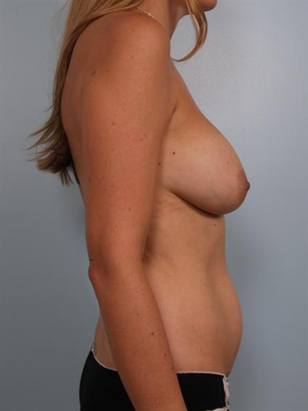 Complex Breast Revision Gallery - Patient 1310640 - Image 3
