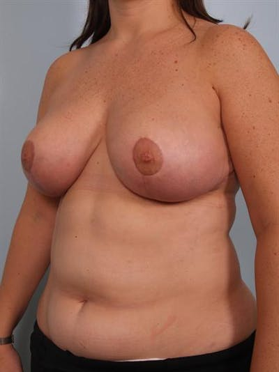 Breast Reduction Gallery - Patient 1310639 - Image 4