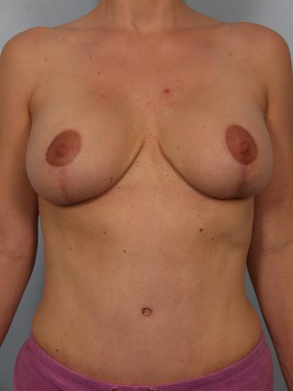 Mommy Makeover Gallery - Patient 1310641 - Image 2