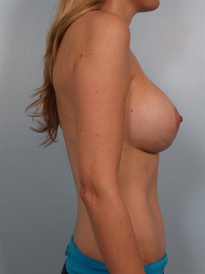 Complex Breast Revision Gallery - Patient 1310640 - Image 4