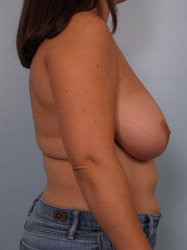 Breast Reduction Gallery - Patient 1310639 - Image 5