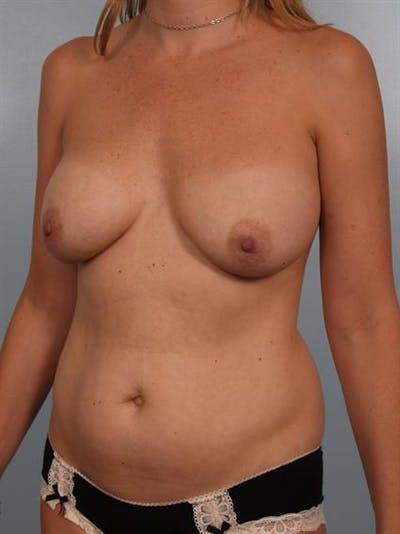 Complex Breast Revision Gallery - Patient 1310640 - Image 1