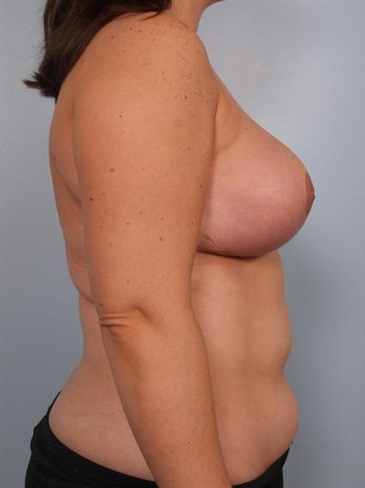 Breast Reduction Gallery - Patient 1310639 - Image 6