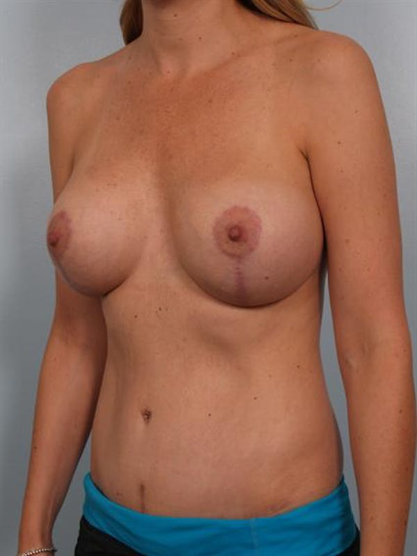 Complex Breast Revision Gallery - Patient 1310640 - Image 2