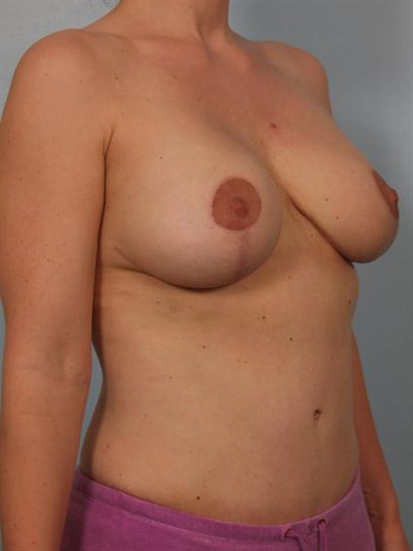 Mommy Makeover Gallery - Patient 1310641 - Image 6