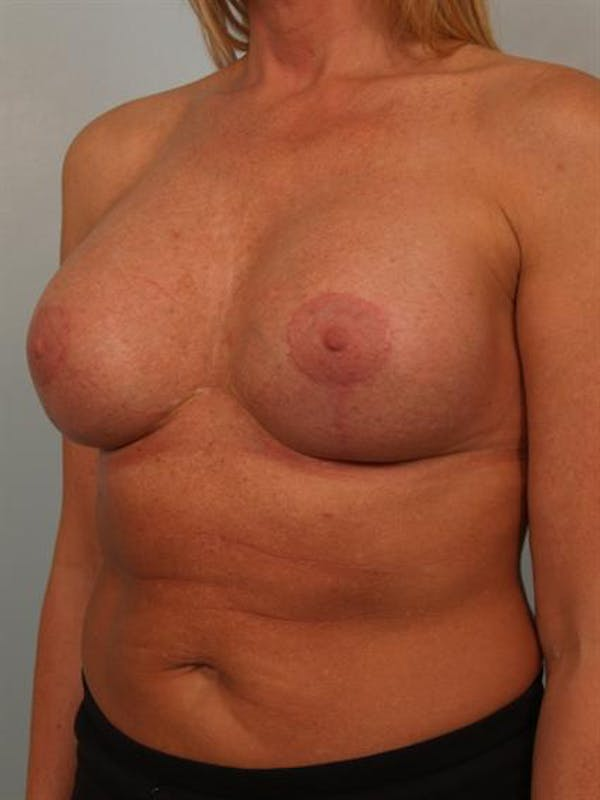 Fat Grafting Gallery - Patient 1310642 - Image 4