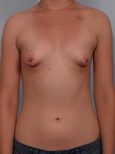 Breast Lift Gallery - Patient 1310643 - Image 1