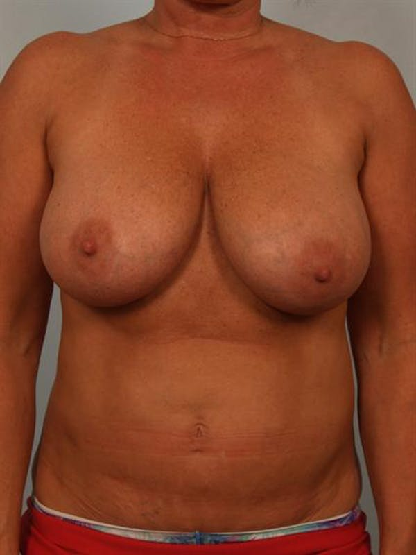 Breast Reduction Gallery - Patient 1310645 - Image 1