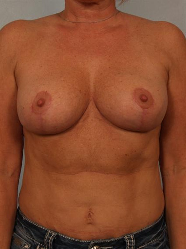 Breast Reduction Gallery - Patient 1310645 - Image 2