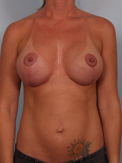 Complex Breast Revision Gallery - Patient 1310647 - Image 2