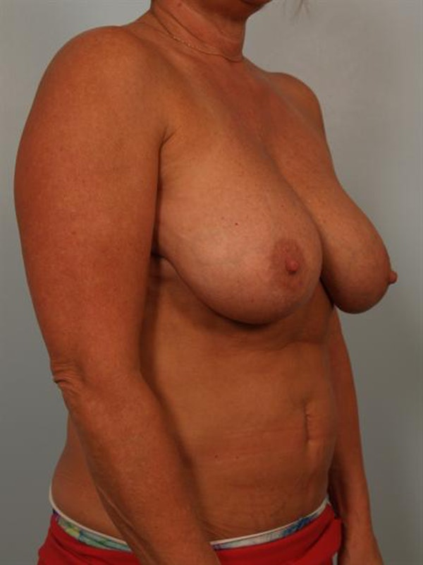 Breast Reduction Gallery - Patient 1310645 - Image 3