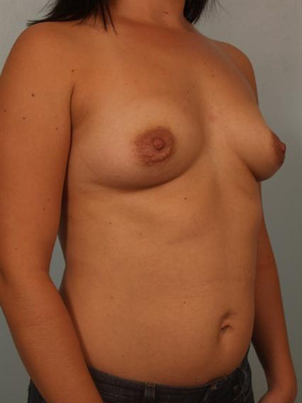 Breast Augmentation Gallery - Patient 1310644 - Image 5