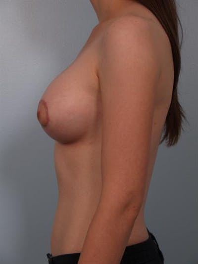 Breast Lift Gallery - Patient 1310643 - Image 4