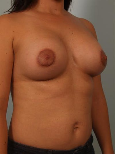 Breast Augmentation Gallery - Patient 1310644 - Image 6