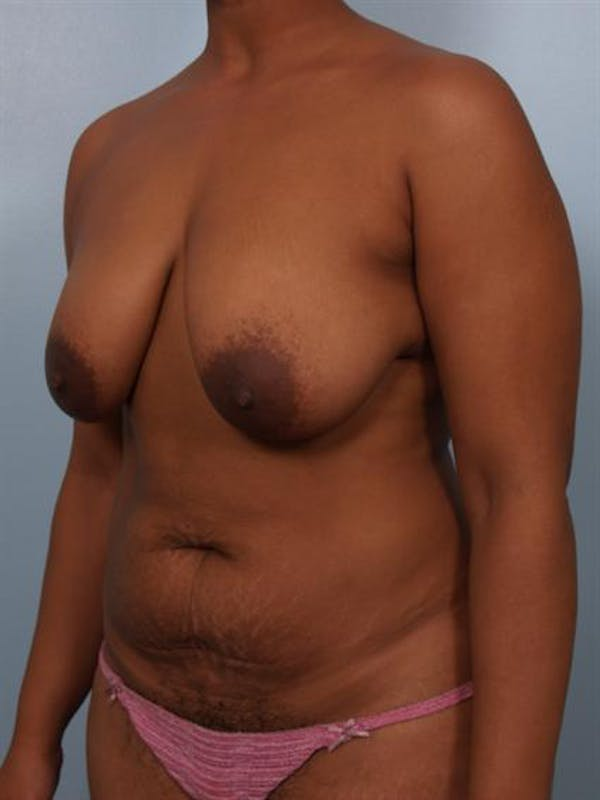 Mommy Makeover Gallery - Patient 1310646 - Image 3